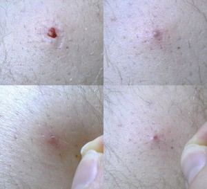 ingrown hair treatment result
