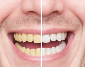 whitening teeth before after