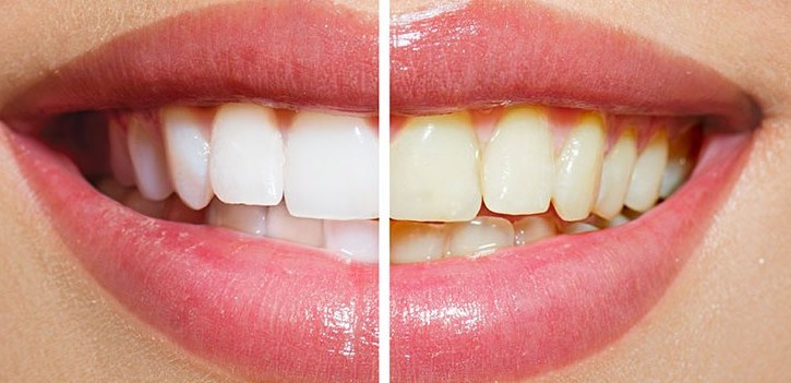 whitening teeth result