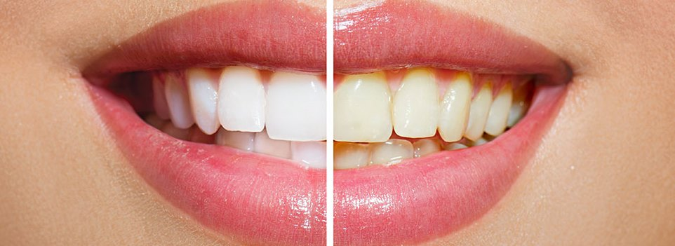 whitening teeth result